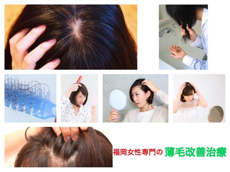 福岡女性専門の薄毛改善治療